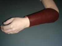 Armschutz (mieten)